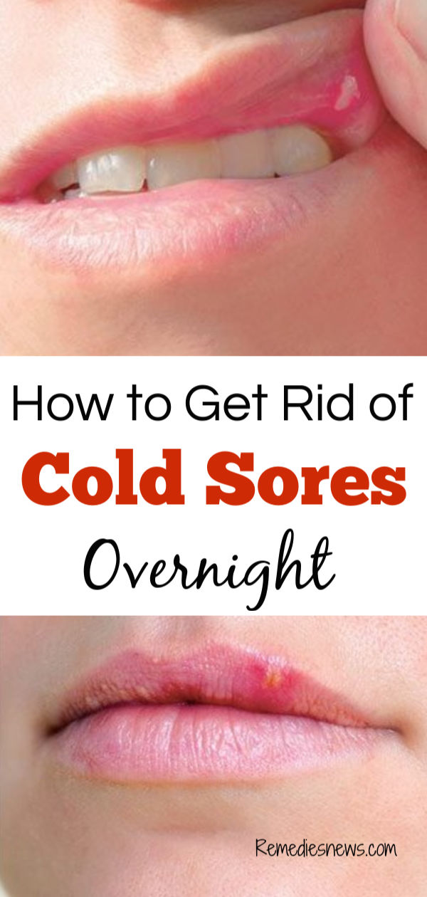 How to Get Rid of Cold Sores Fast: 11 Best Home Remedies