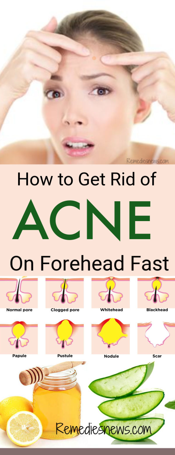 How To Get Rid Of Acne On Forehead Overnight 11 Best Acne Remedies