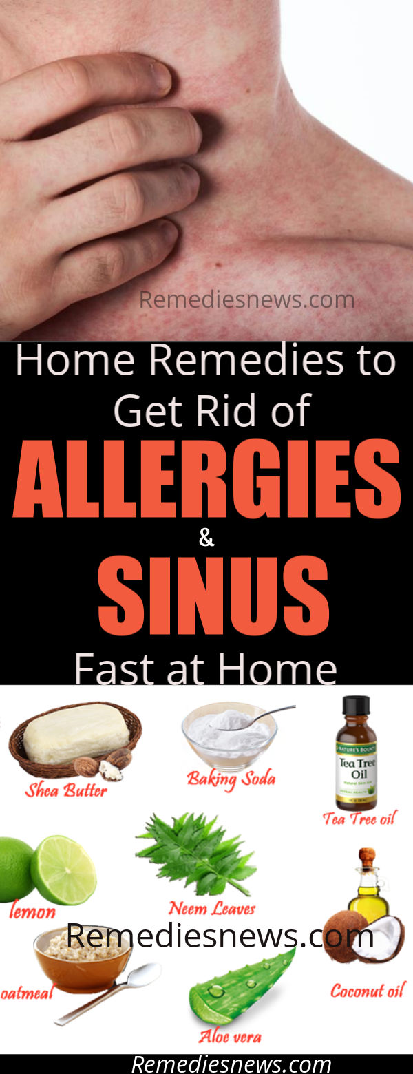 what can get rid of allergies