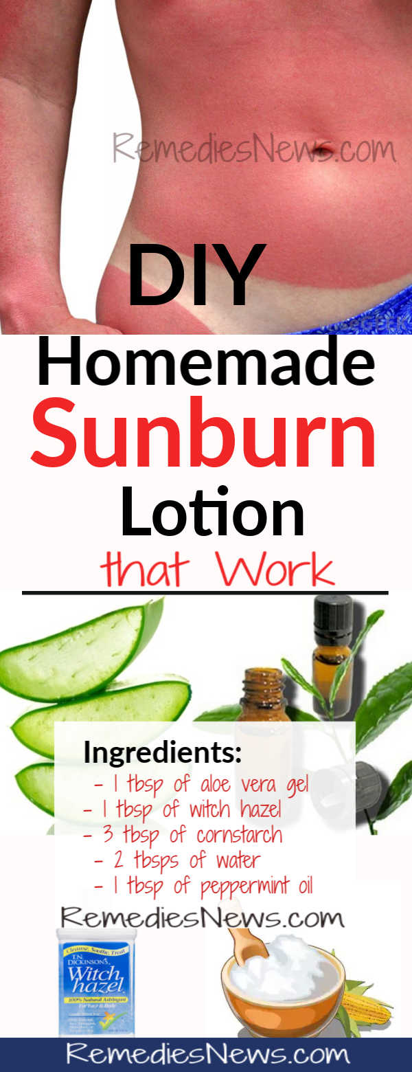 How to Get Rid of Sunburn Dark Skin Overnight - 9 Best Remedies for Sunburn