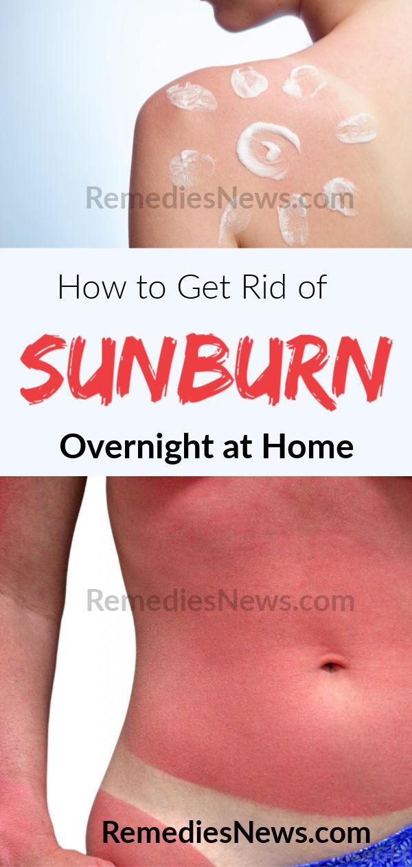 How to Get Rid of Sunburn Dark Skin Overnight - 9 Best Remedies for Sunburn