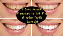 How to whiten teeth naturally. Find here how to get rid of yellow teeth over night