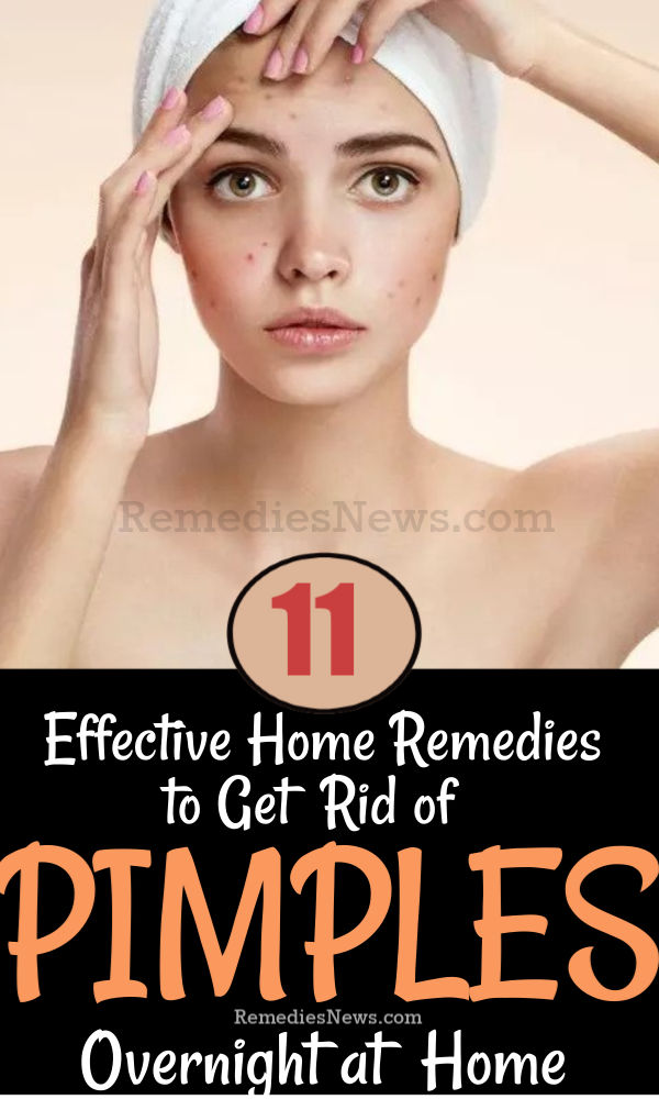 11 Effective Home Remedies to Get Rid of Pimples Overnight