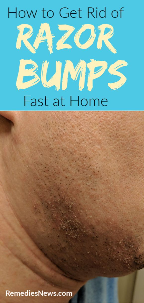 How To Get Rid Of Razor Bumps Fast With 13 Home Remedies