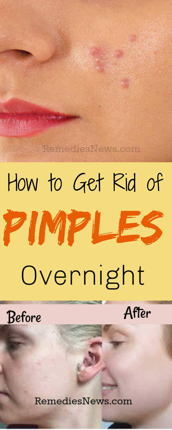 11 Effective Home Remedies to Get Rid of Pimples and Acne Overnight
