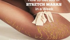 Top 11 Home Remedies to Get Rid of Stretch Marks in a Week at Home