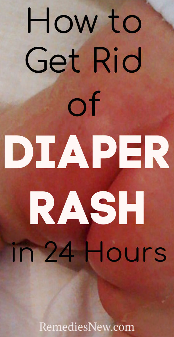 11 Natural Remedies to Get Rid of Diaper Rash in 24 Hours at Home