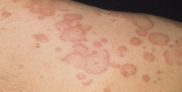 Para manchas de piel