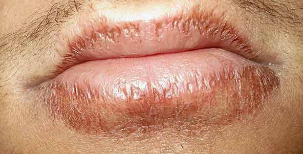 Como sanar labios agrietados