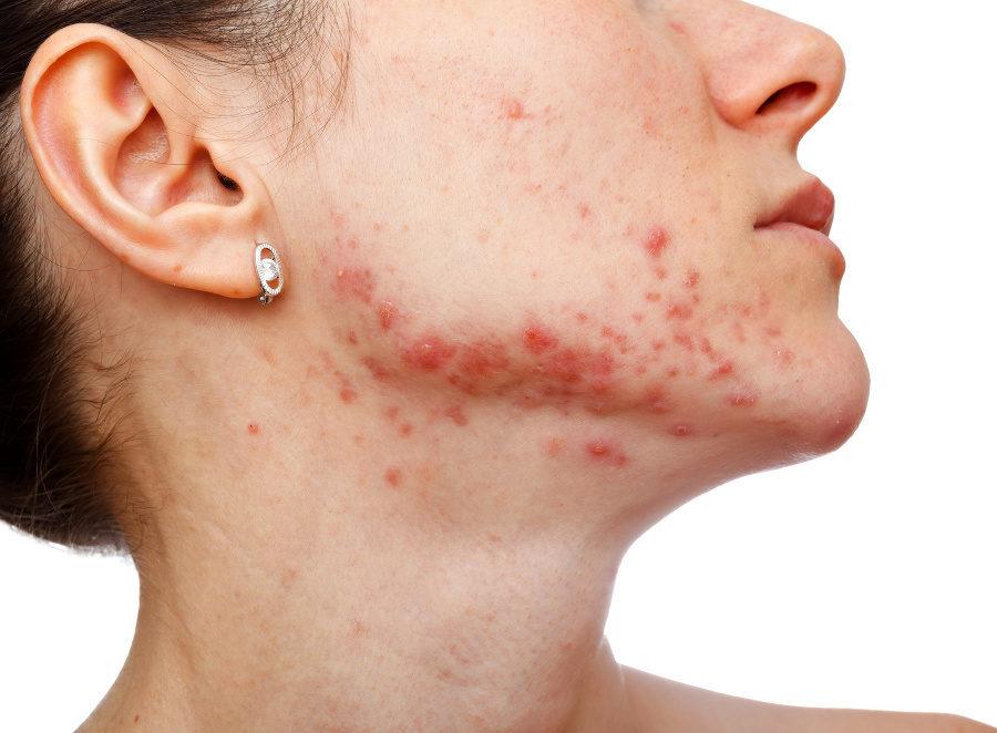 Miel con canela es bueno para el acné
