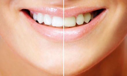 Remedios naturales para blanquear los dientes