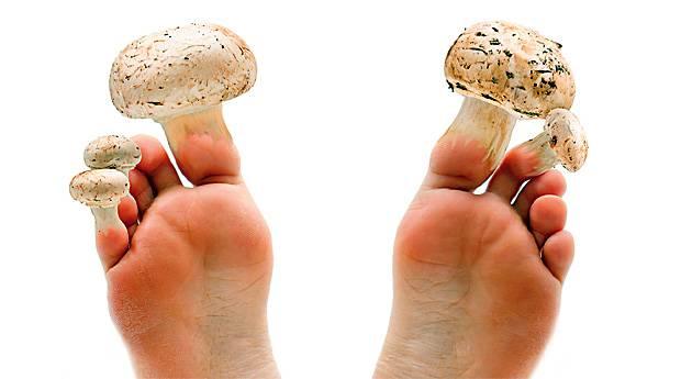 Remedios naturales para hongos en los pies