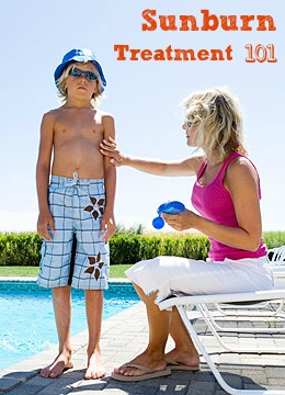 Sunburn Treatment 101 | Tipsaholic.com #sunburn #remedy #prevention #treatment #outdoors