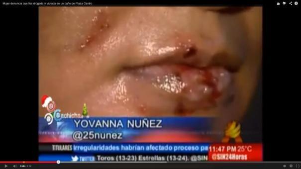 13 Video  Mujer denuncia fue drogada y violada en baño de una Plaza [RD]
