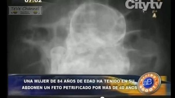 fetopretificado Una doña con feto en el vientre por 40 años