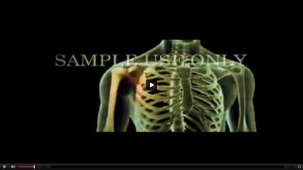 115 Son más comunes en RD los problemas en los huesos [Video]