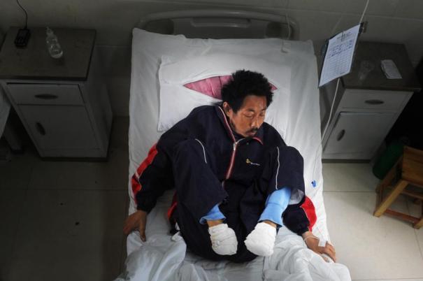feet16n 1 web Agricultor chino se cortó su propios pies con vidrio