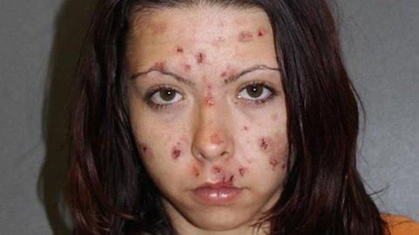 metanfetamina Así terminó por joder con droga [Fotos]
