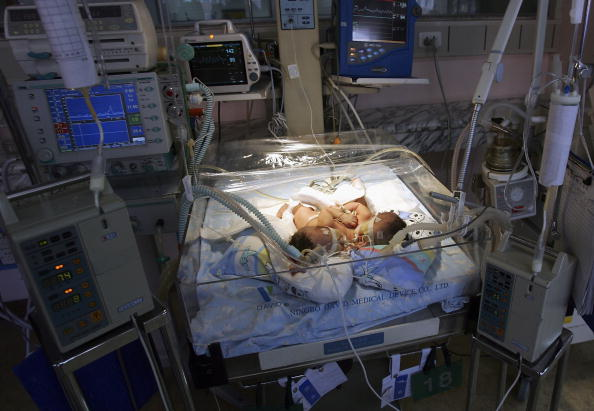 Siamese Twin Girls To Be Separated In Chongqing