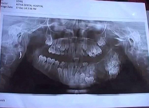 image241 Le sacan 80 dientes a un chamaquito en la India