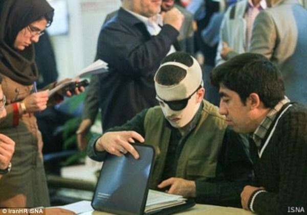 image135 Le arrancan ojo a iraní como castigo por cegar a otro con ácido