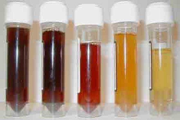 image446 El color de la orina puede tener implicaciones sobre la salud