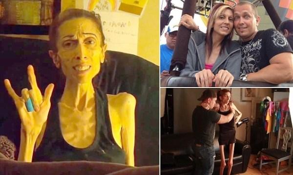 image638 La actriz anoréxica que pesa solo 40 libras recauda US$200 mil