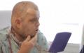 cara Sin precedentes cirugía de Trasplante de cara