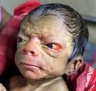 bebe viejo La rara enfermedad:bebé nace con cara de anciano