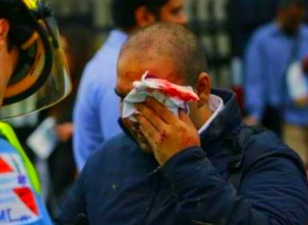 hobo VIDEOS   108 HERIDOS EN ACCIDENTE DE TREN EN NEW JERSEY