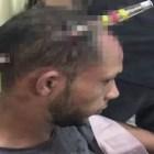 caco Santiago: Le clavan puñal en la cabeza y sobrevive