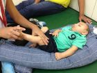 microcefalia Siete casos de niños con microcefalia en Barahona