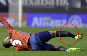 tno Futbolista dominicano sufrió una fea fractura