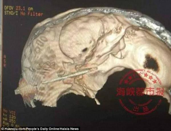 chino 3 Tipo haciendo fila en un hospital con un cuchillo enterrao' que le clavó la jeva