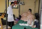el hombre mc3a1s obeso del mundo Operaron al tipo más gordito del mundo
