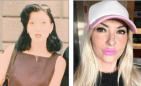 Rachel Evans 300x183 Fotos   Gasta mas US$25,000 pa transformarse en Barbie