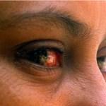 conjuntivitis 150x150 Más de 66,626 afectados por conjuntivitis en RD