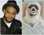 criollo 4 150x120 Video: Así está el dominicano que fue víctima de persecución policial