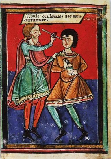 Operation-de-l oeil-au-Moyen-age—1195