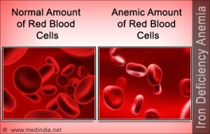 iron-deficiency-anemia