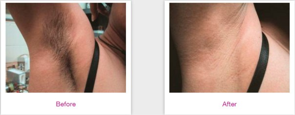 Results Laser Hair Removal queens ny