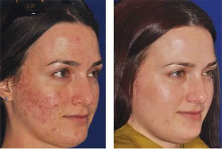 Before and After Micropen™ treatment by Jody Comstock, MD