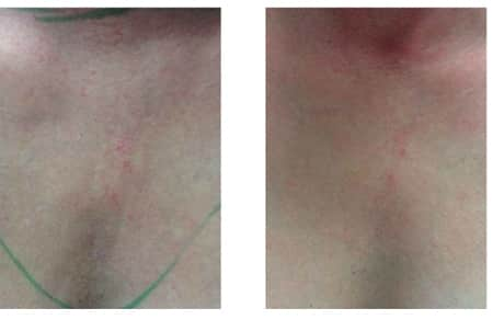 Before and After Micropen™ treatment by Julie Kieffer