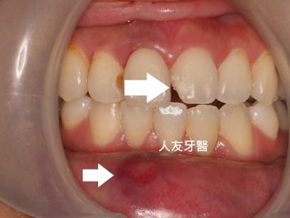 預防牙齒斷裂創傷-民眾自我處理篇 – 人友牙醫 RenU