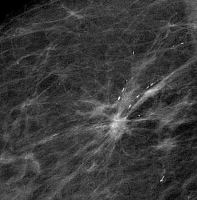 mammografie_mammakarzinom