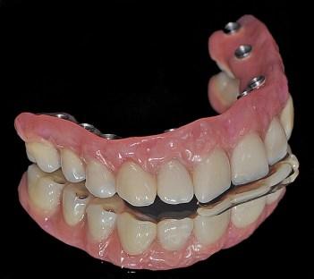 """Résultat de recherche d'images pour """"prothése dentaire trans vissée"""""""