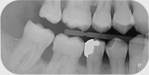 """Résultat de recherche d'images pour """"radio dentaire bite wing"""""""