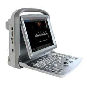 CHISON ECO5 Ultrasound Machine with Color Doppler