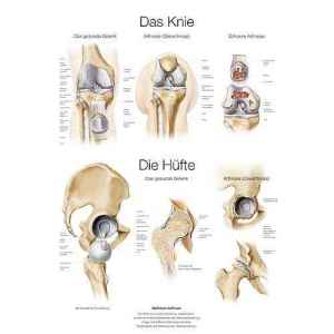 """Lehrtafel """"Das Knie/ Die H?fte"""""""