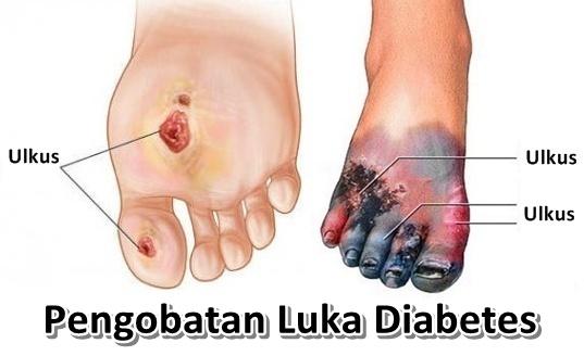 Obat Luka Diabetes Di Apotik